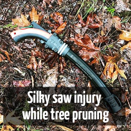 Silky saw injury